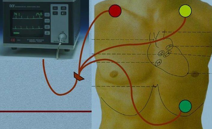 CT koronarnih arterija -komparativna analiza različitih protokola 1