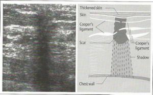 Fizički principi ultarzvučne dijagnostike VZS - kurs 2