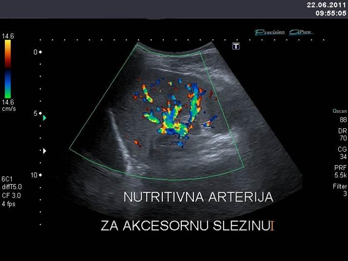 Ultrazvučna dijagnostika slezine 3