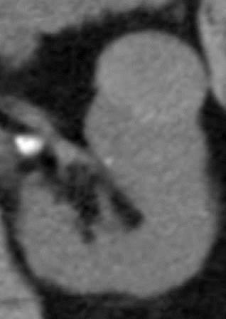 CT angiografija bubrega 59