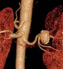 CT angiografija bubrega 20