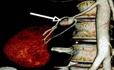 CT angiografija bubrega 22