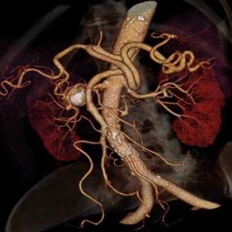 CT angiografija bubrega 24
