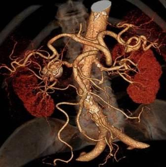 CT angiografija bubrega 25