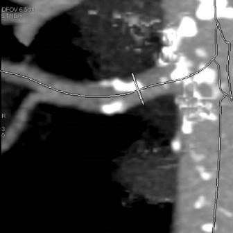 CT angiografija bubrega 12