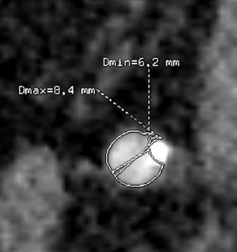 CT angiografija bubrega 13