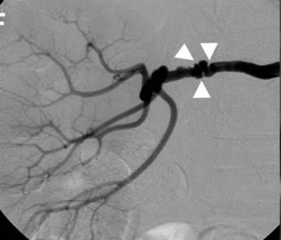 CT angiografija bubrega 36