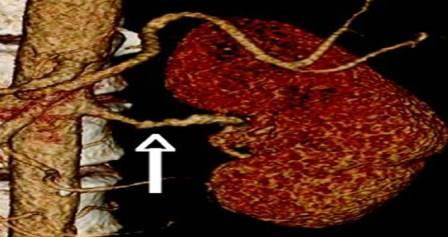CT angiografija bubrega 31