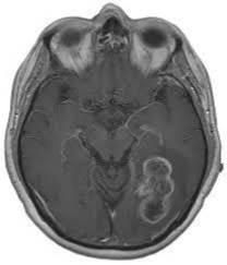 Tehnički aspekti u otkrivanju tumora endokranijuma MR 3