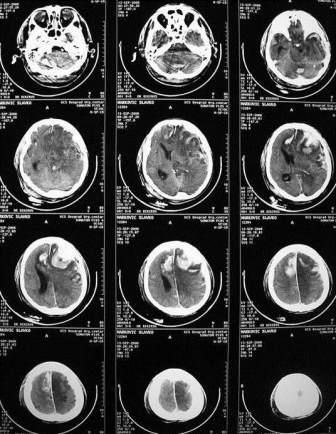 CT PROTOKOLI U DIJAGNOSTICI INTRAKRANIJALNIH PROCESA VZS 7