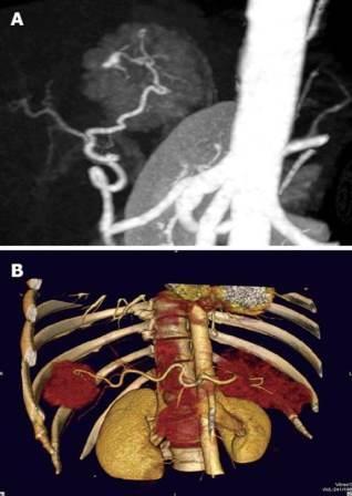 CT protokoli za fokalne promene lezije u jetri 53