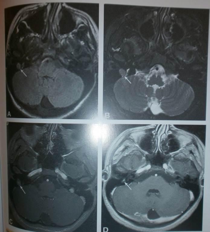 Tehnički aspekti u otkrivanju tumora endokranijuma MR 8