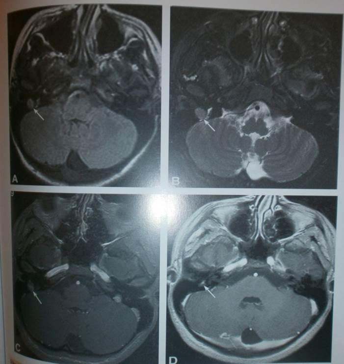 Tehnički aspekti u otkrivanju tumora endokranijuma MR 7