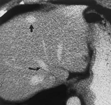 CT protokoli za fokalne promene lezije u jetri 11