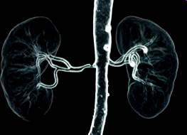 CT angiografija bubrega 29