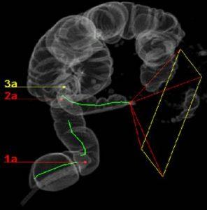 Upoznavanje sa CT protokolima za sprovođenje virtuelne kolonoskopije i cistoskopije 5