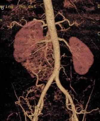 CT angiografija bubrega 53