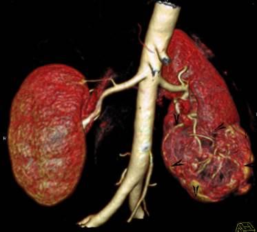 CT angiografija bubrega 58
