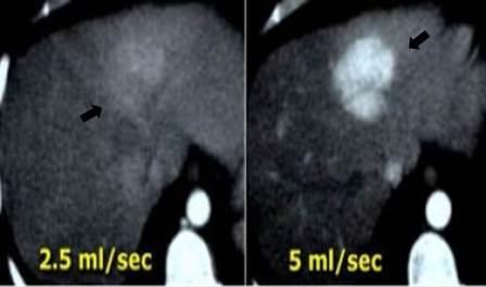 CT protokoli za fokalne promene lezije u jetri 33