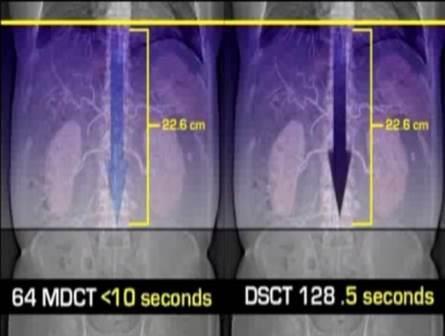 CT protokoli za fokalne promene lezije u jetri 36