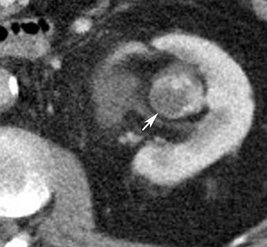 CT angiografija bubrega 73