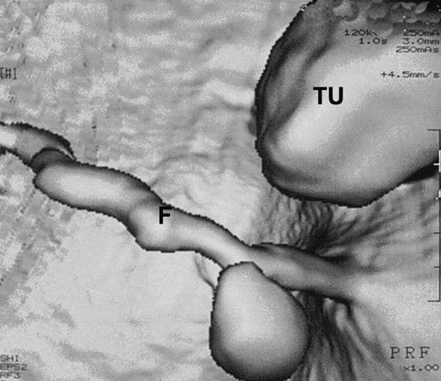 Upoznavanje sa CT protokolima za sprovođenje virtuelne kolonoskopije i cistoskopije 7