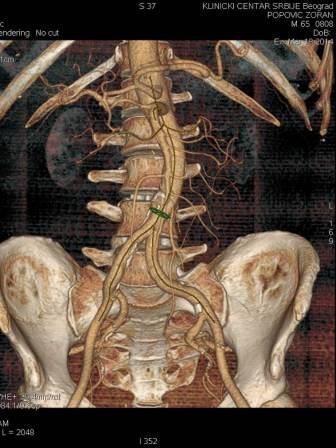 CT angiografija bubrega 76