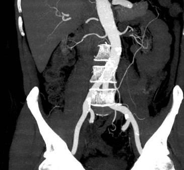 CT angiografija bubrega 78