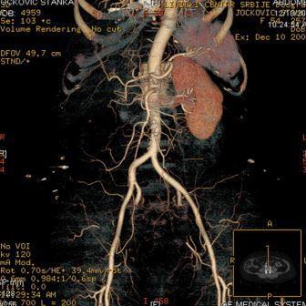 CT angiografija bubrega 51