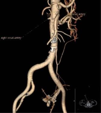 CT angiografija bubrega 52