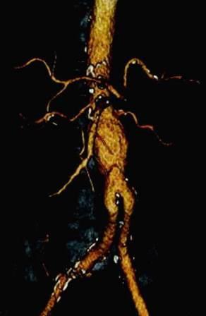 CT angiografija bubrega 83