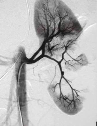 CT angiografija bubrega 49